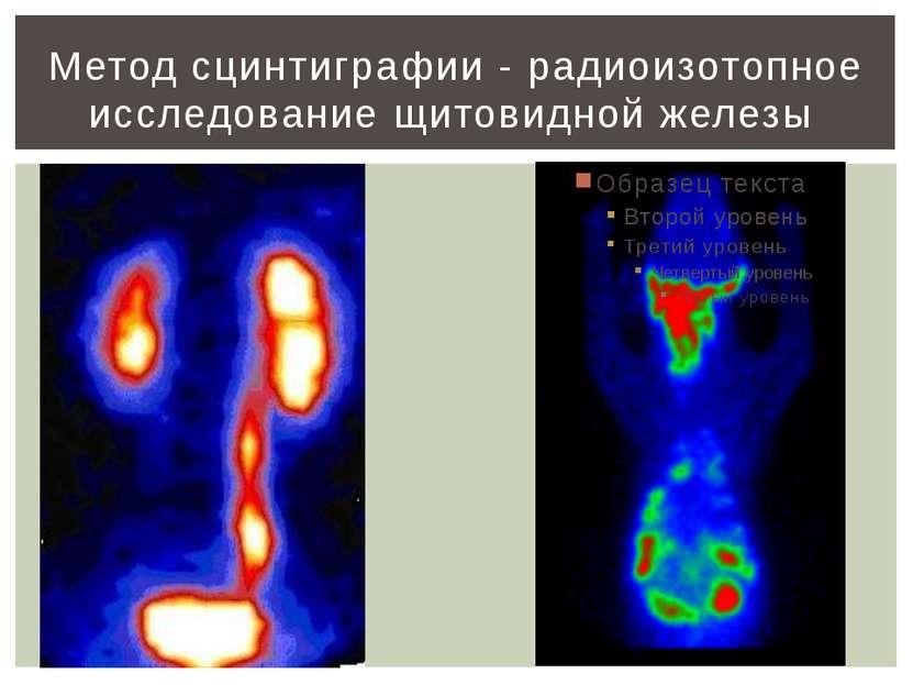 Методы обследования щитовидной железы