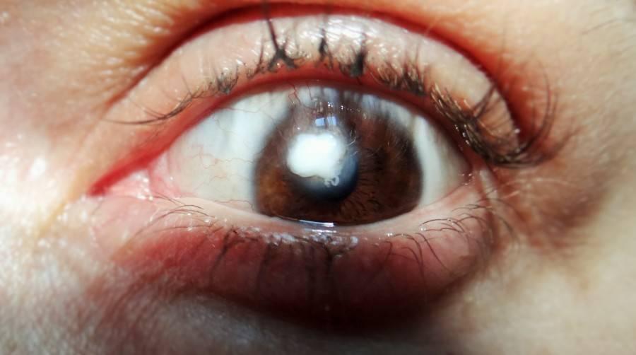 Болит глаз и пленка на глазу