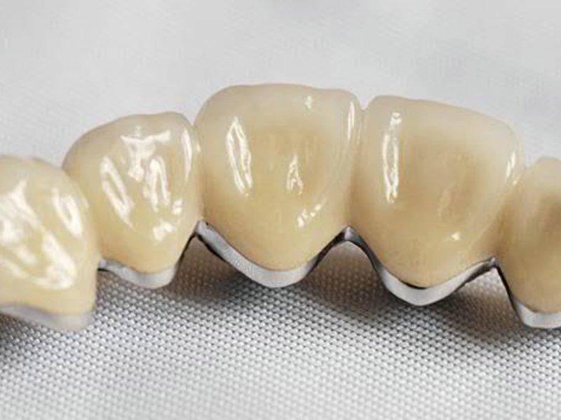 Как и для чего проводится препарирование зубов под металлокерамическую коронку?