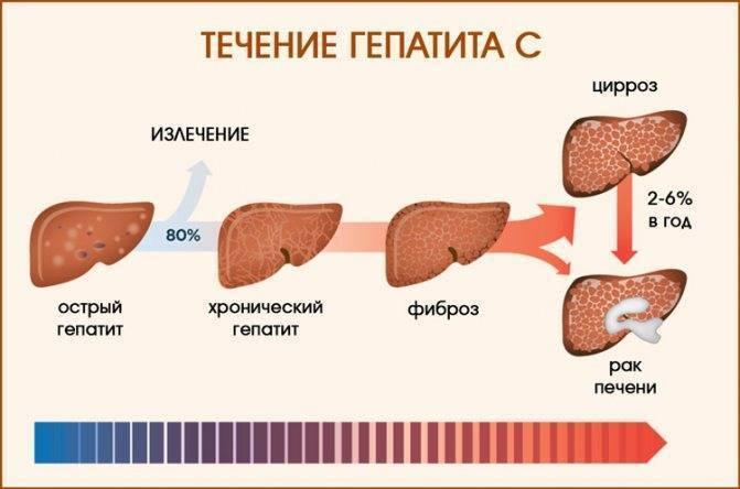 Поддержка печени при гепатите с