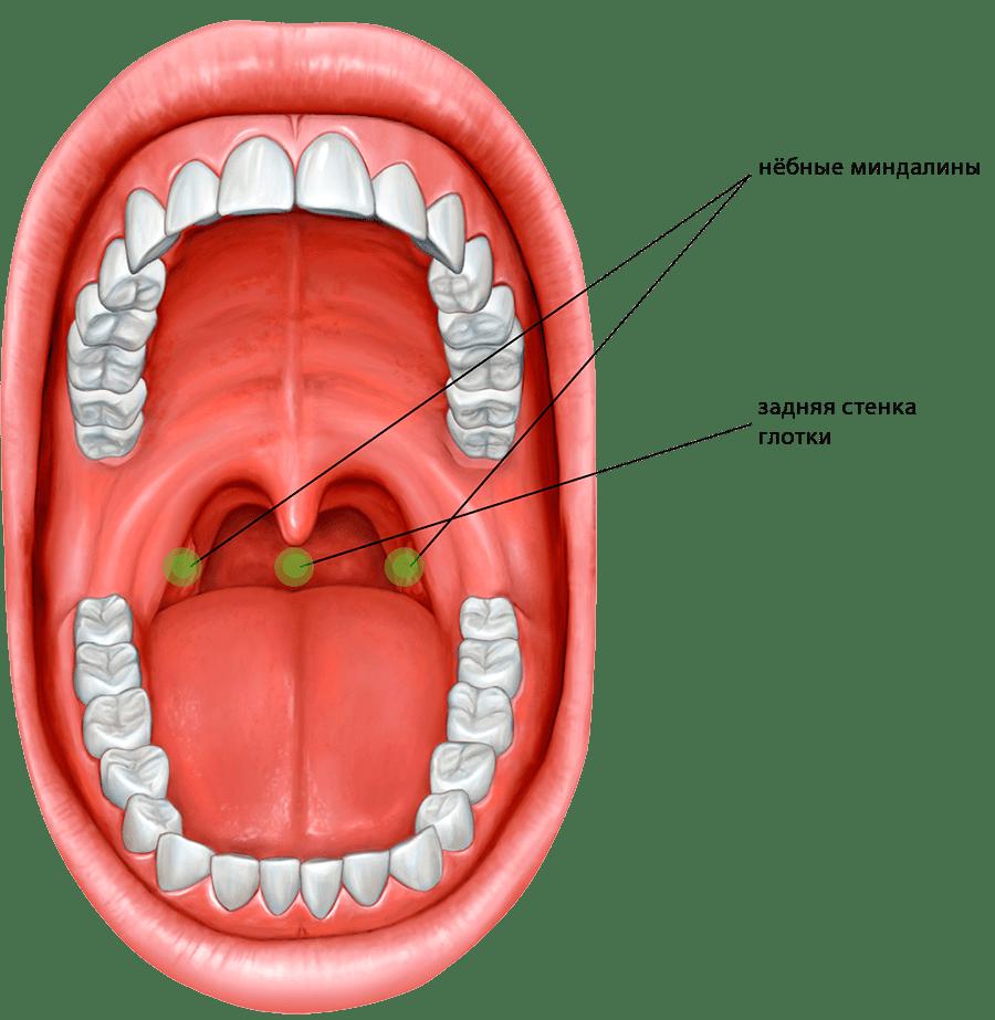 Желтые язвочки в горле