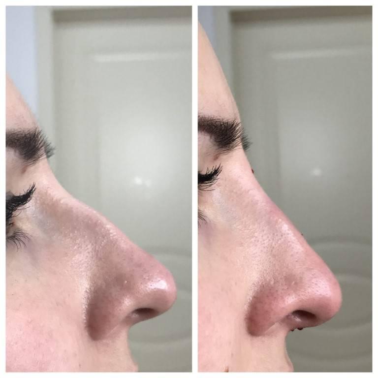 Как убрать синяк на носу