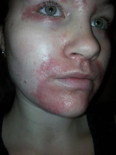 Периоральный дерматит пройдет ли сам