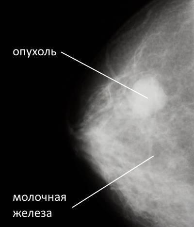 Узелковые уплотнения в молочной железе — норма или есть повод для беспокойства?
