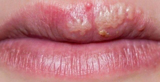 Как правильно распознать герпес во рту и чем лечить его у взрослых
