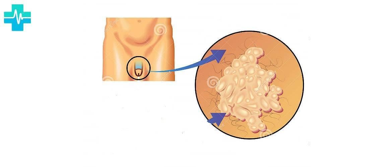 Уреаплазма у женщин – причины возникновения, симптомы, лечение. уреаплазма парвум, уреалитикум, специес