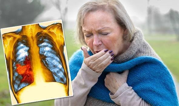 редкий сухой кашель без температуры