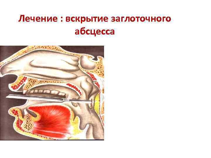 Заглоточный абсцесс: причины, симптомы, диагностика и лечение