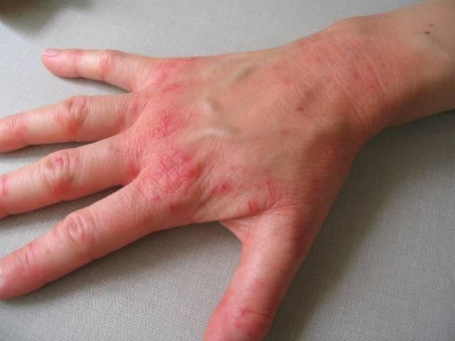 Лучевой дерматит: причины заболевания, основные симптомы, лечение и профилактика