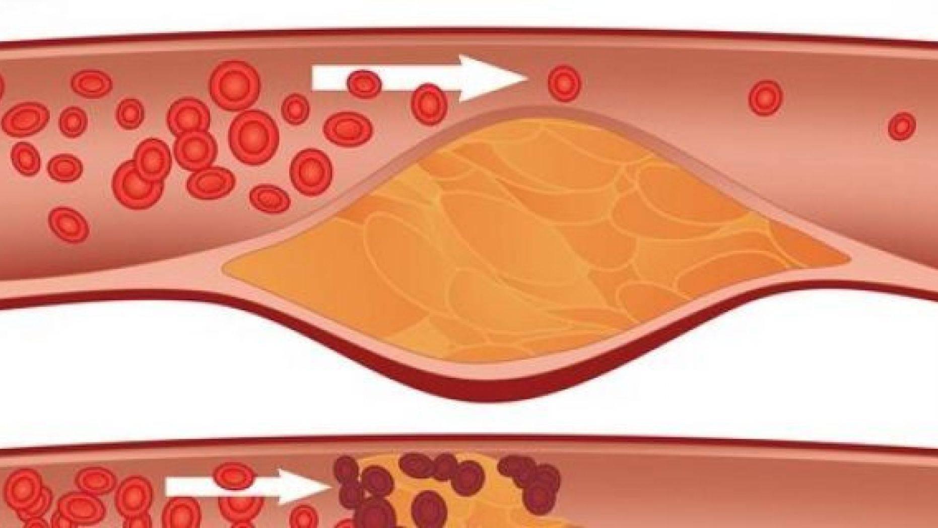 холестериновая бляшка и тромб