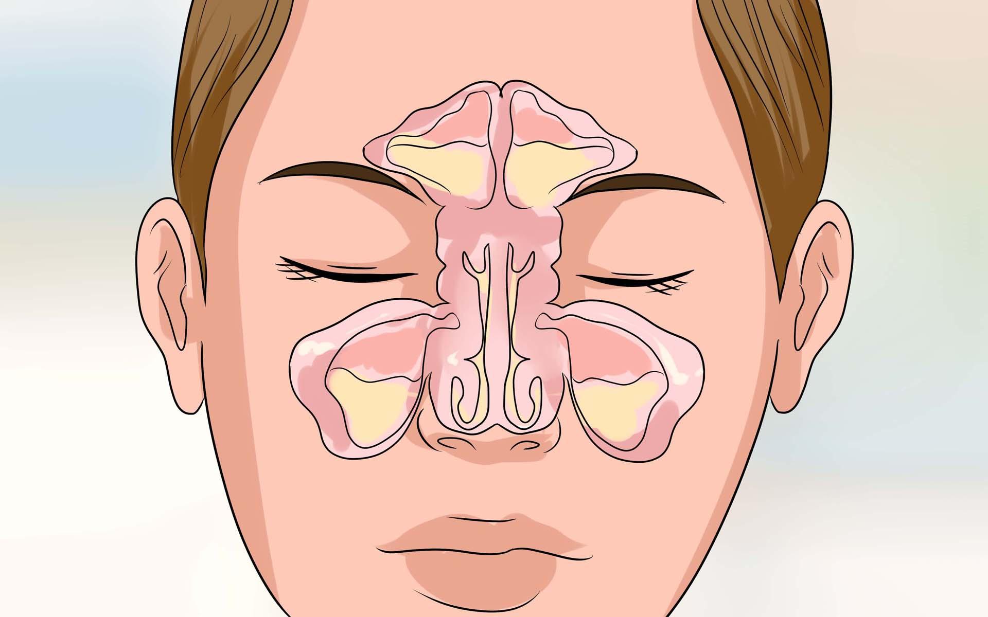 воспаление гайморовых пазух