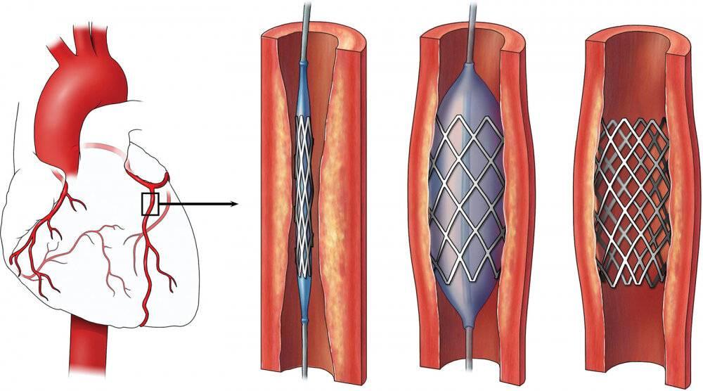атеросклероз кардиосклероз
