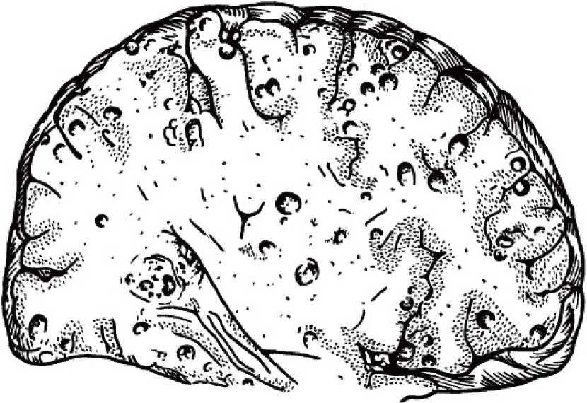 Цистицеркоз - описание болезни