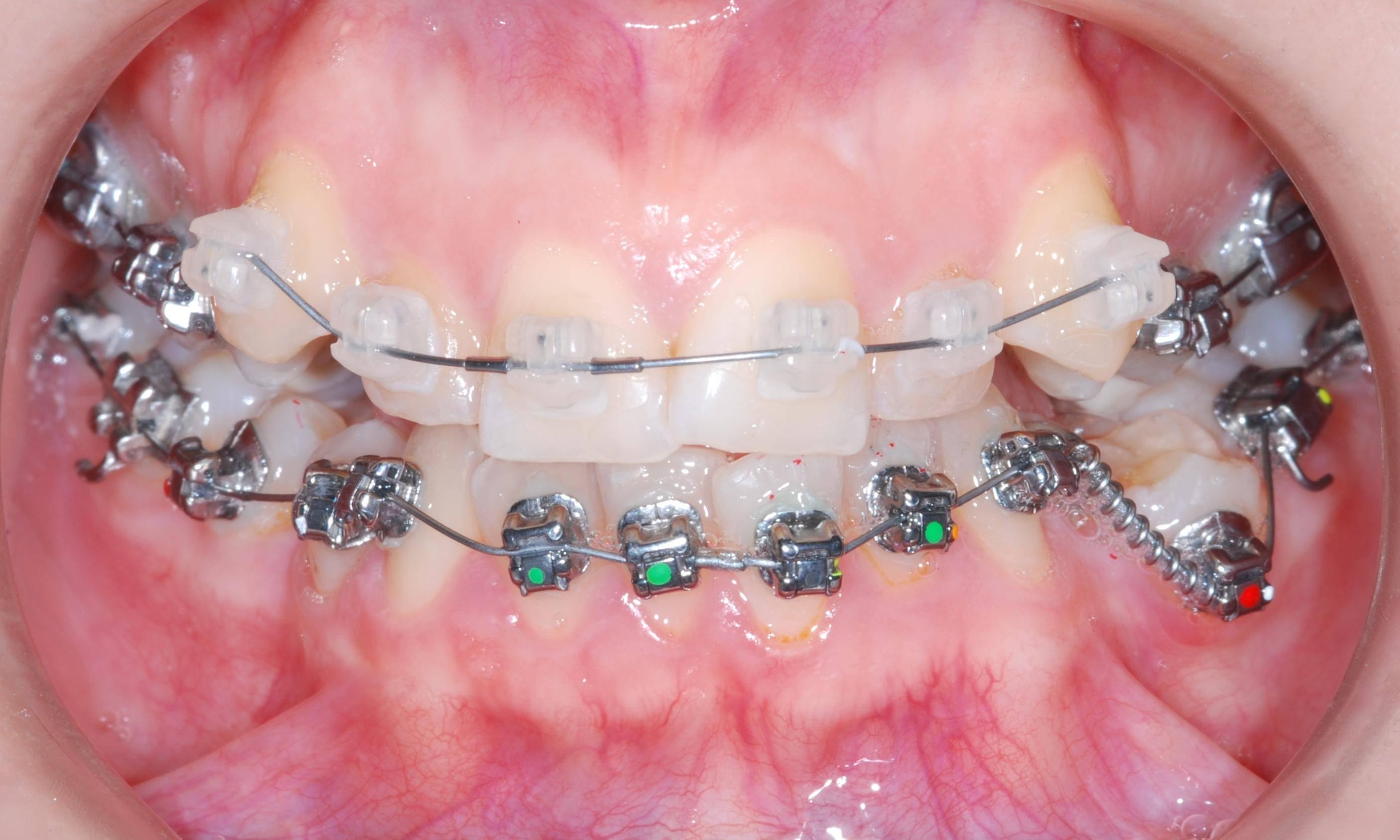 какие бывают брекеты на зубы