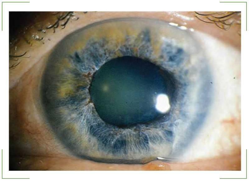 Закрытоугольная глаукома: причины, симптомы, лечение и профилактика