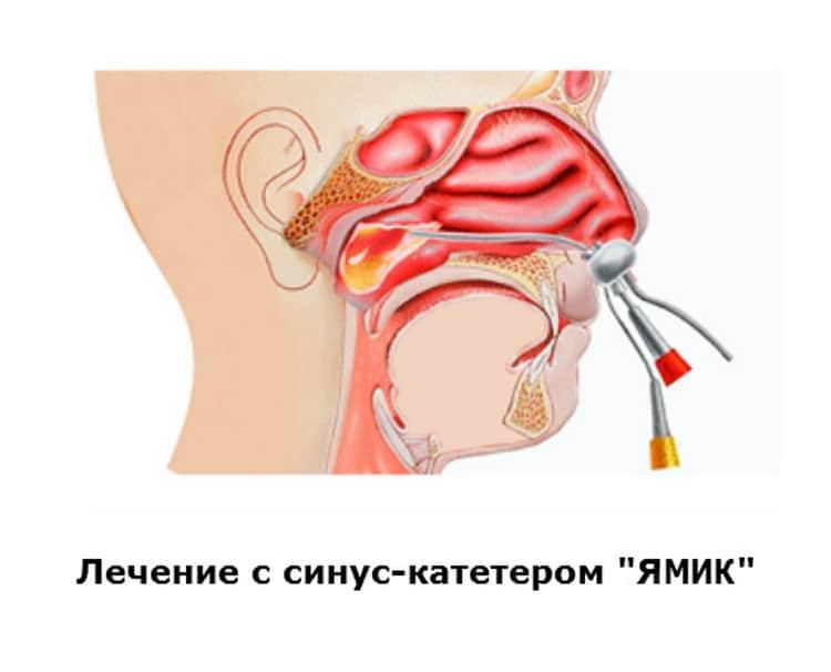 Гайморит при беременности лечение в домашних условиях