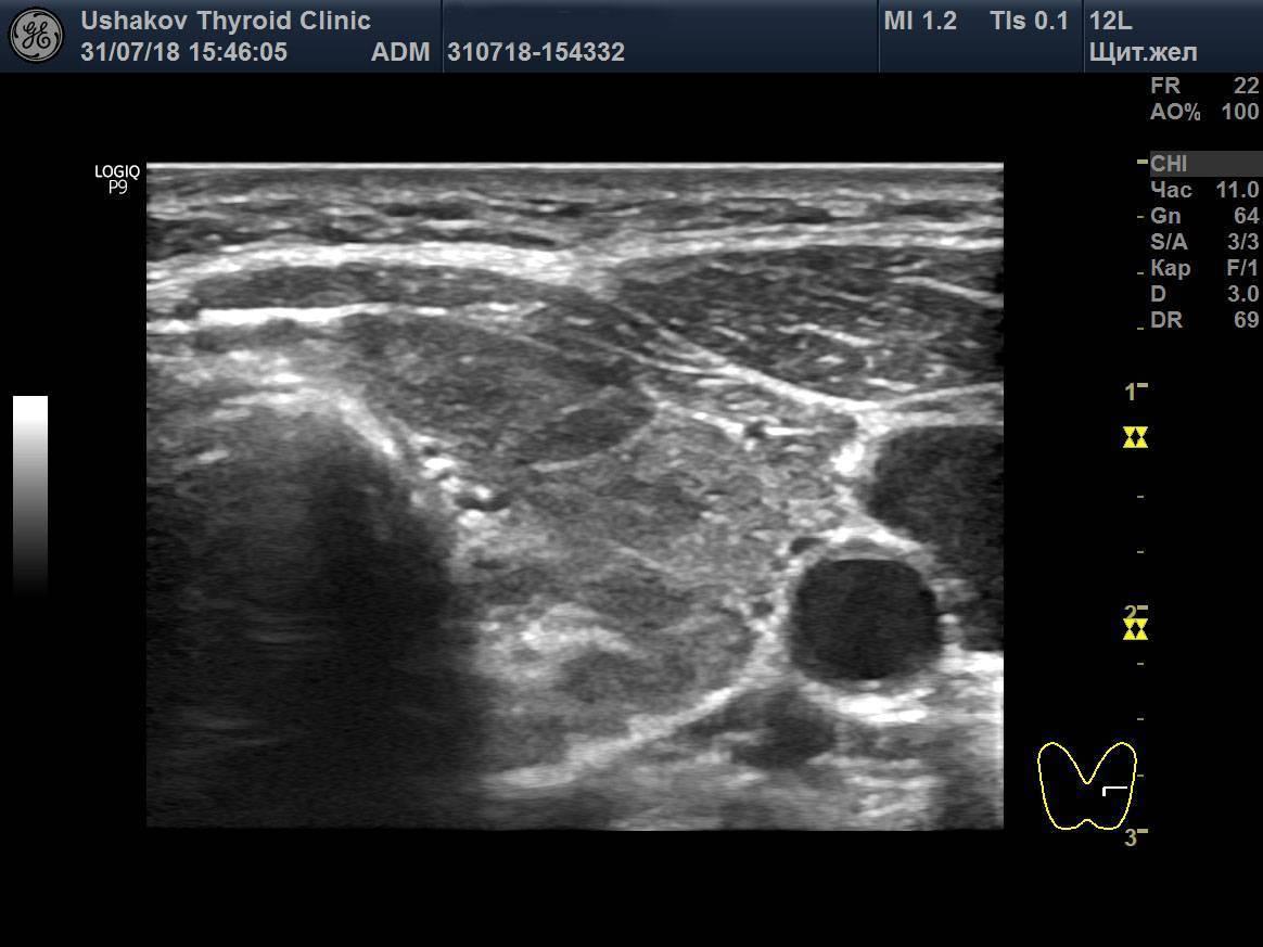 Нормы и патологии выявляемые узи щитовидной железы.