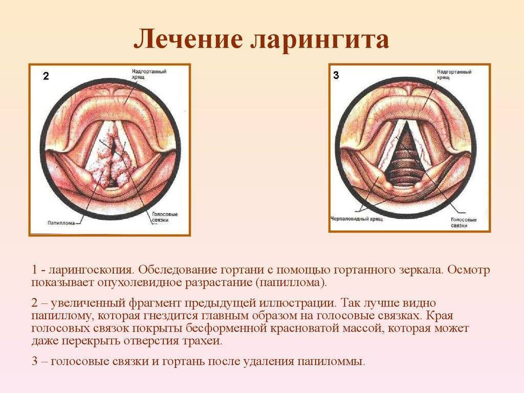 Особенности лечения острого и хронического ларингита при беременности