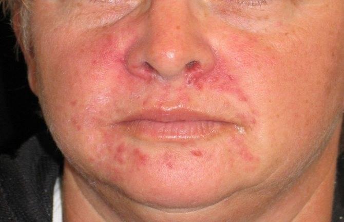кожный зуд при болезни печени