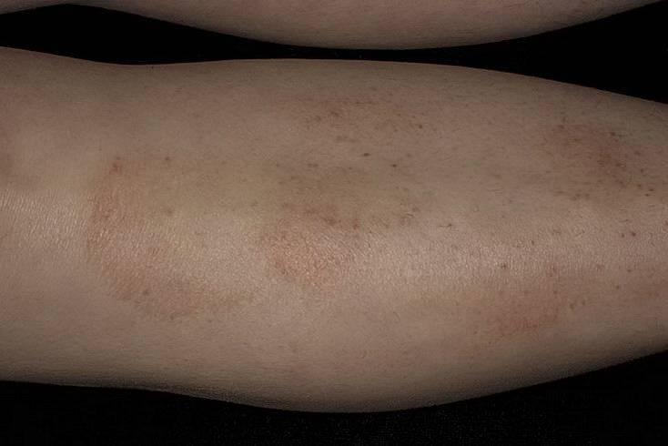 Аллергический дерматит на нервной почве