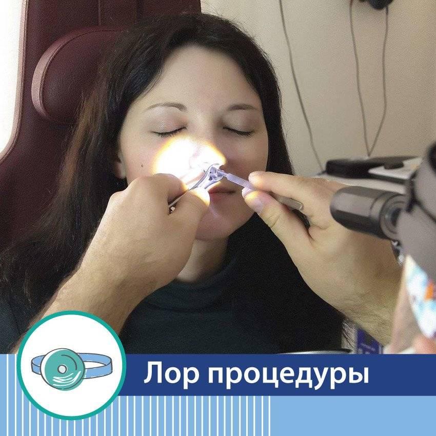 Рассечение синехий полости носа