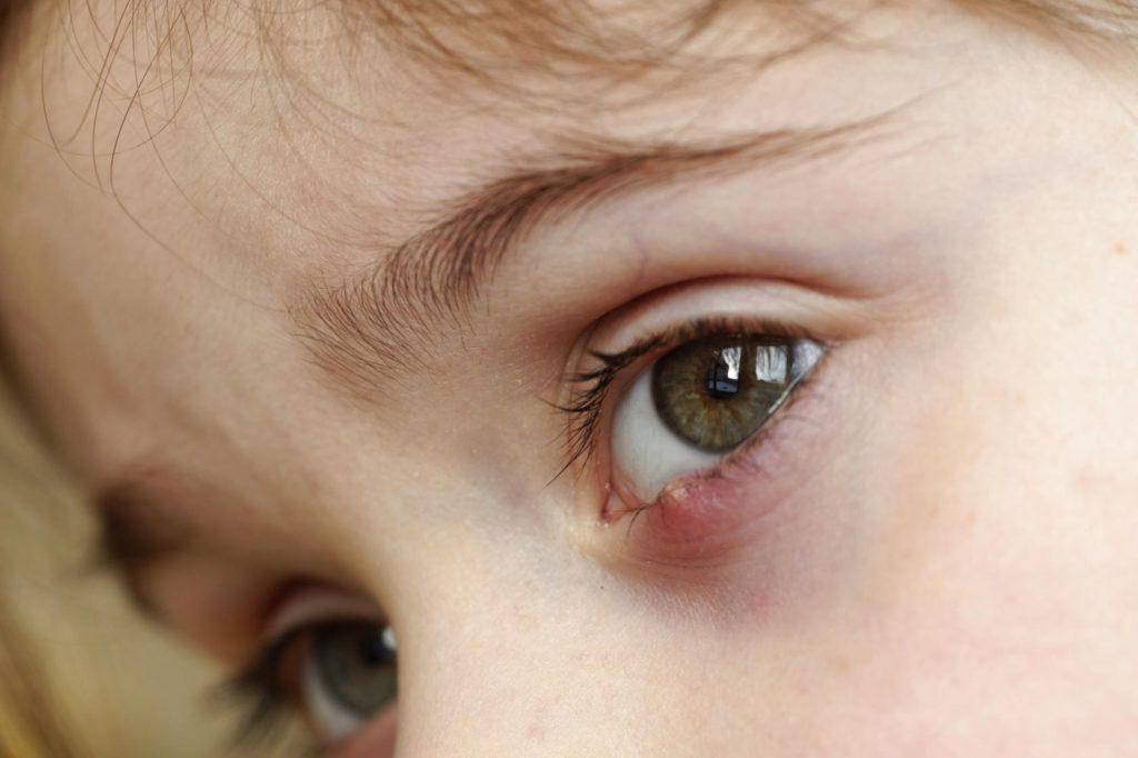 воспаление глаза у новорожденного лечение