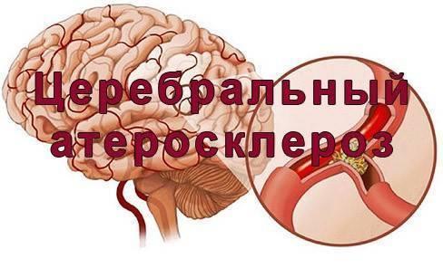 Церебральный атеросклероз 3 степени