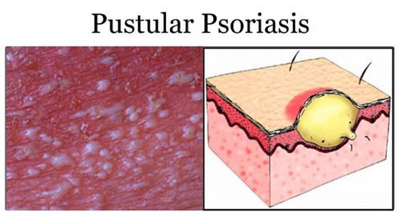 экссудативная форма псориаза