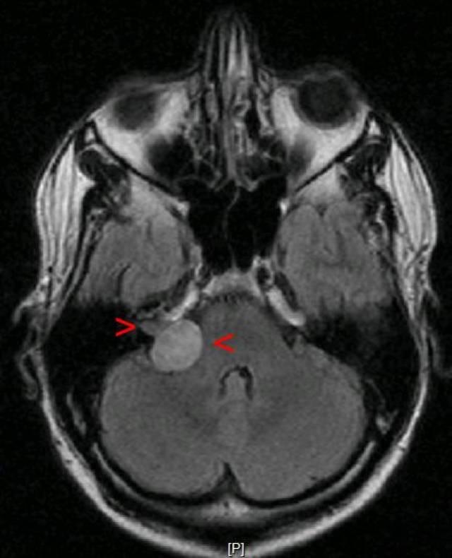 Невринома слухового нерва — что это, причины, диагностика, терапия