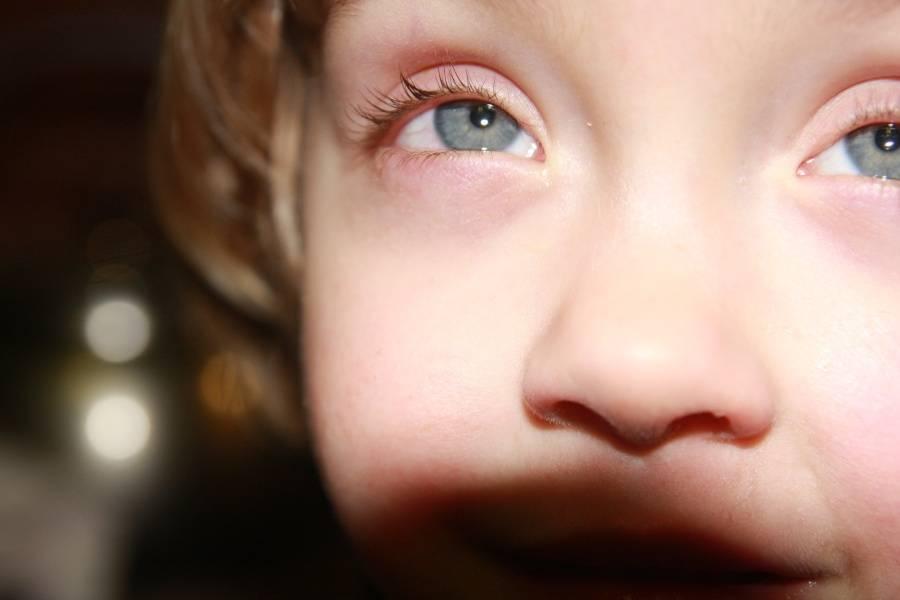 Лечение конъюнктивита у детей по комаровскому