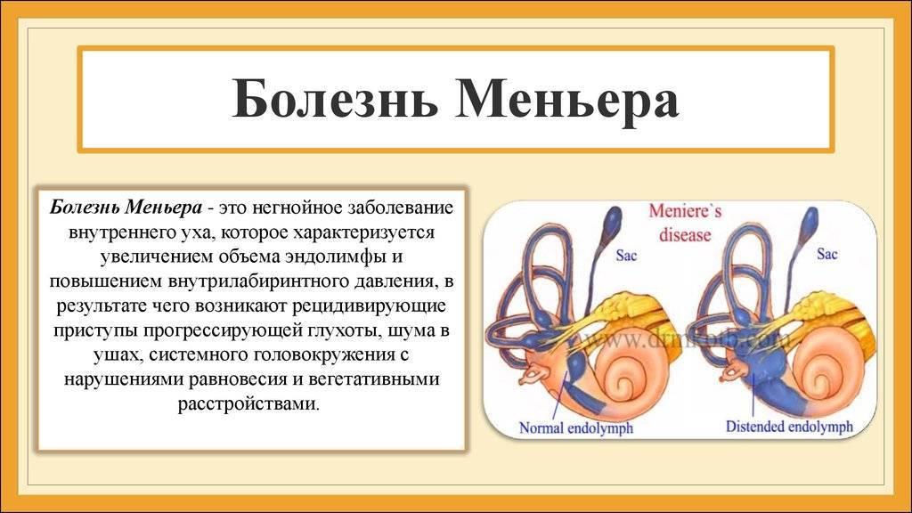 Как проявляется болезнь меньера и способы ее лечения