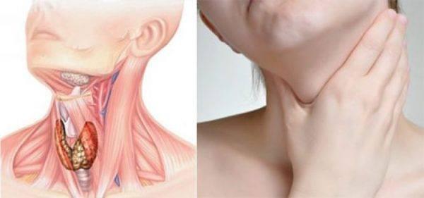 Признаки рака горла и гортани у мужчин