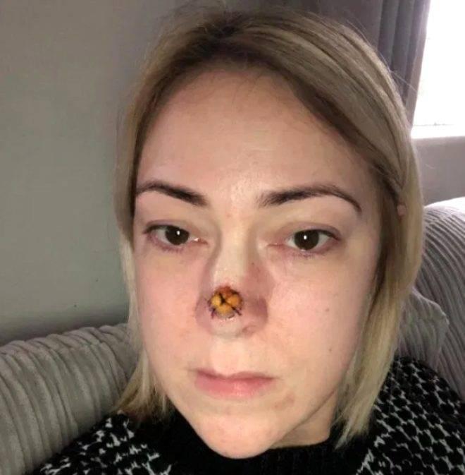 Доброкачественные опухоли полости носа