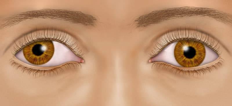 синдром ленивого глаза у взрослых лечение