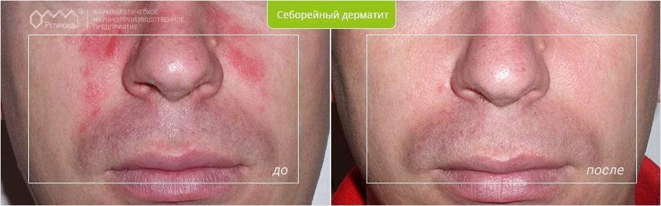Мази от себорейного дерматита на лице, голове у взрослых. цены, отзывы