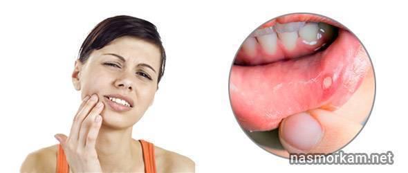 длительная боль в горле без температуры