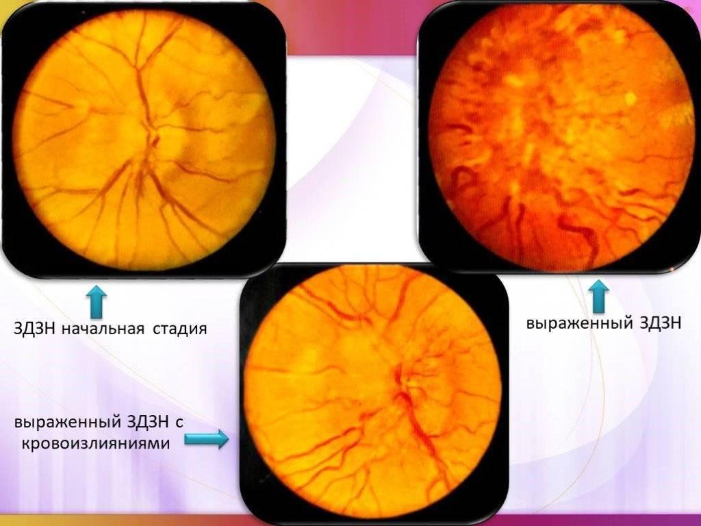 Что такое застойный диск зрительного нерва