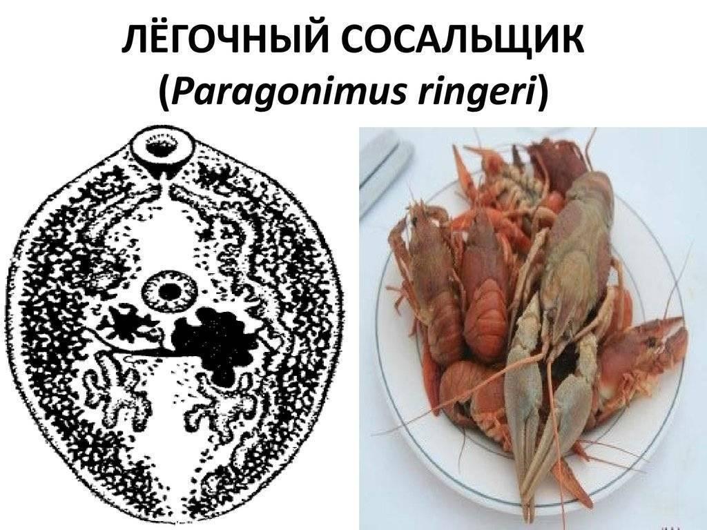 Легочный сосальщик (рaragonimus westermani): строение, жизненный цикл, симптомы, лечение парагонимоза