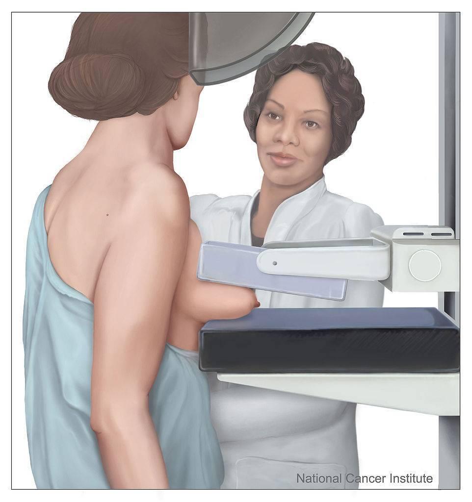 как пройти маммографию