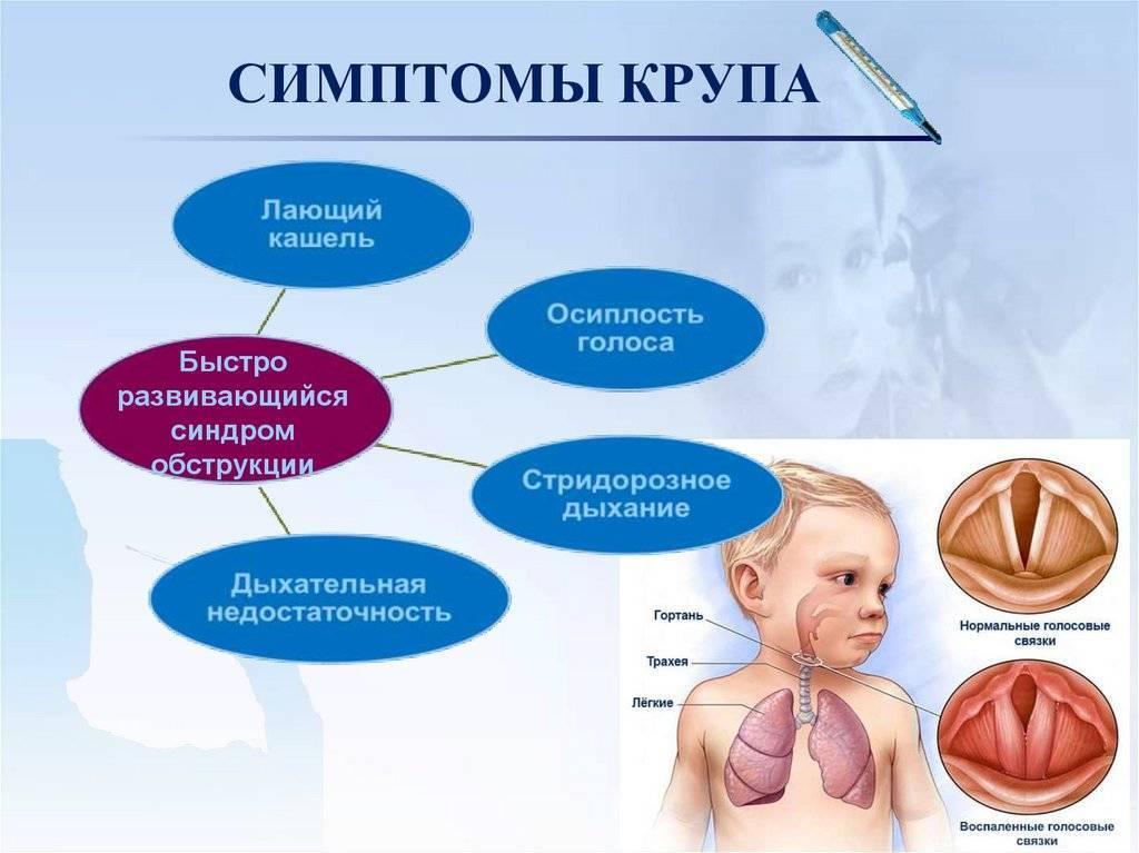 Ложный круп у детей – симптомы, лечение, причины