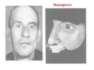 Рак носа: симптомы