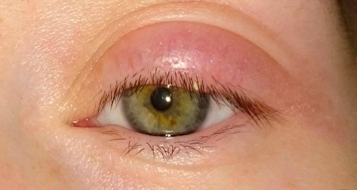 болит верхнее веко глаза