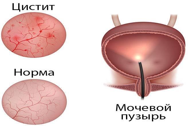 Как должно проходить лечение острого цистита у женщин