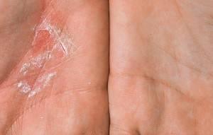 Пустулезный псориаз подошв и ладоней барбера: симптоматика и лечение