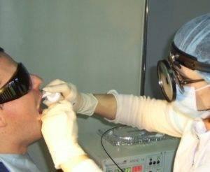 Тонзиллотомия: что это такое, методы проведения и их особенности