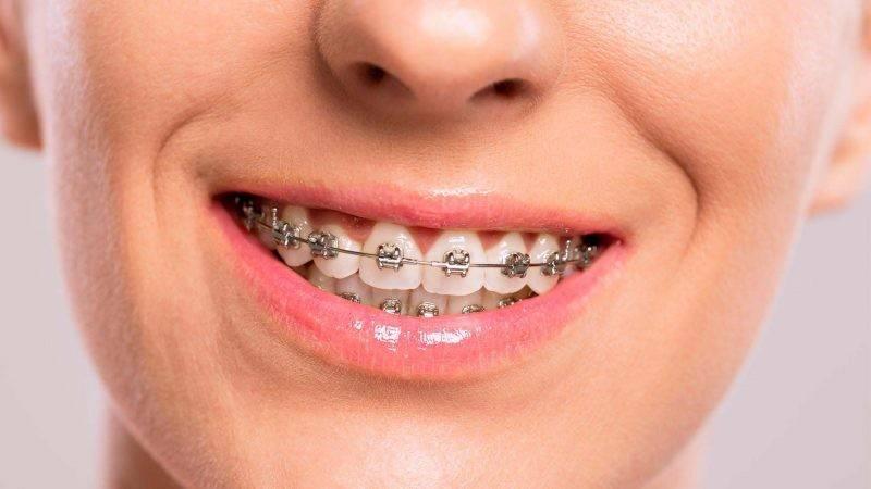Скобы на зубы: назначение, разновидности, установка