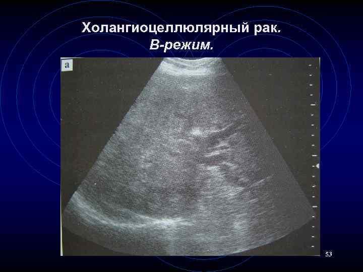 Холангиокарцинома — википедия. что такое холангиокарцинома