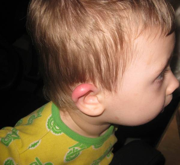 Что делать, если у ребенка краснеют и опухают уши