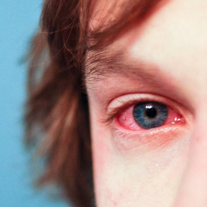 Что такое инфекционный конъюнктивит?
