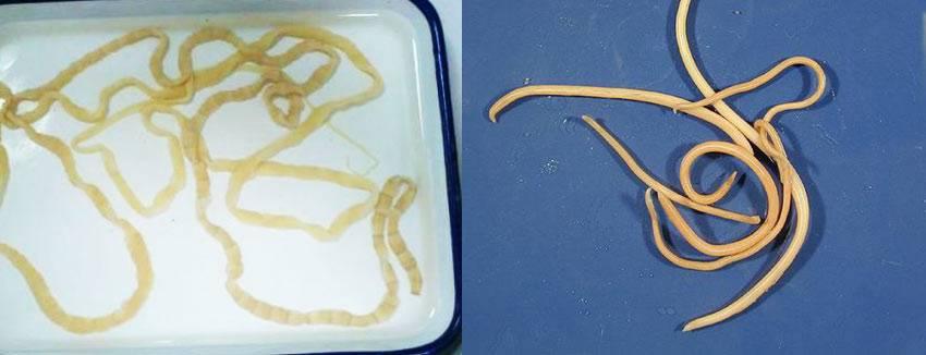 диагностика глистов